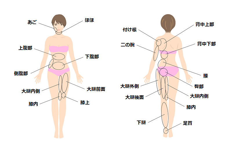 脂肪吸引の適応部位