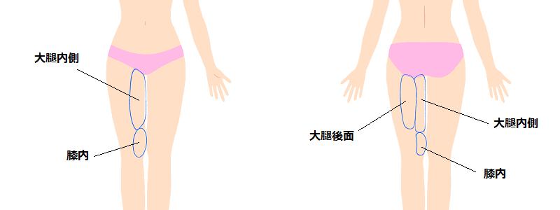大腿内側の脂肪吸引