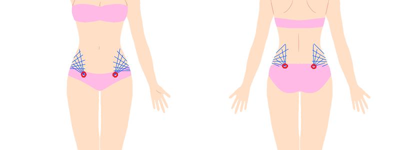 ウエスト腰の脂肪吸引