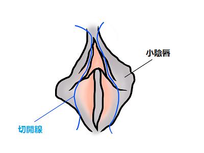 小陰唇縮小術のデザイン