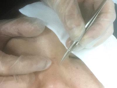 稗粒腫摘除