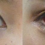 ヒアルロン酸注入による涙袋形成