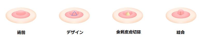 乳頭縮小術(横幅を小さくする場合)