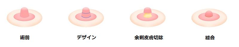 乳頭縮小術(長さを短くする場合)