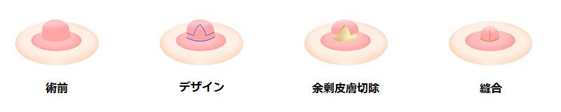 乳頭縮小術(全体的に小さくする場合)