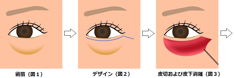 下眼瞼切開の方法1