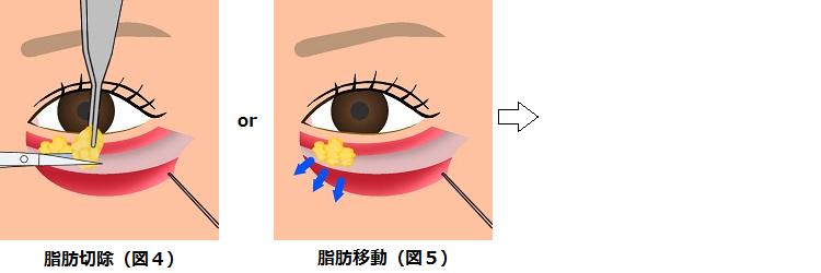 下眼瞼切開の方法2