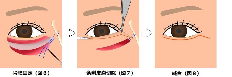 下眼瞼切開の方法3