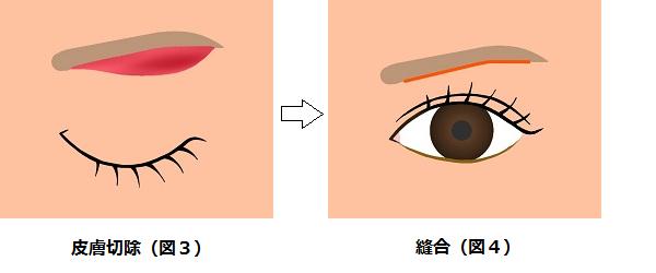 眉下切開の方法2
