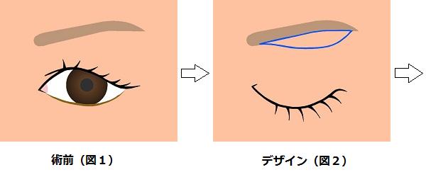 眉下切開の方法1