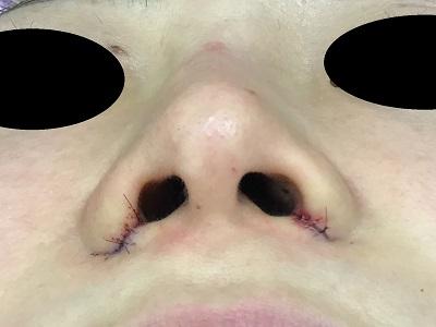鼻翼縮小術直後