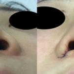 鼻翼縮小術(内側法)モニター