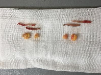 切除した皮膚と眼窩脂肪
