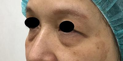 下眼瞼切開術前ななめ