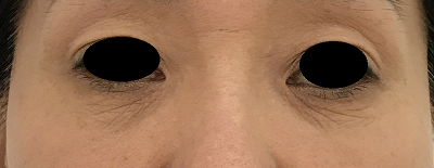 下眼瞼切開術前