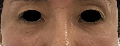 下眼瞼切開術後1ヶ月目