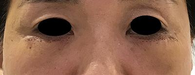 下眼瞼切開術後1週間