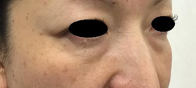 経結膜脱脂術前(ななめ)