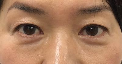 目の上たるみ取り術前