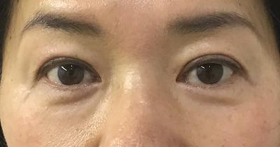 目の上たるみ取り術後