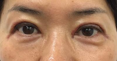 目の上たるみ取り術後2日目