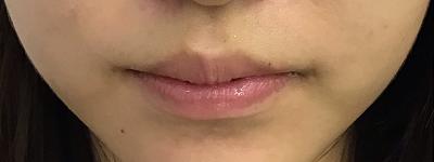 口唇ヒアルロン酸注入前