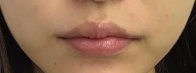 口唇ヒアルロン酸注入後