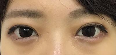 眼瞼下垂術後1ヶ月