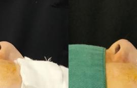 鼻尖部への耳介軟骨移植