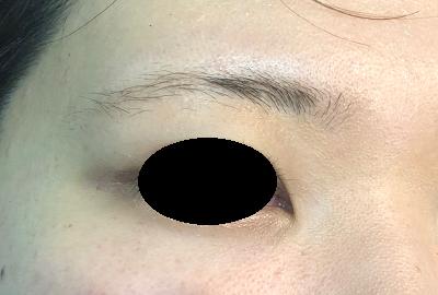 3D眉アートメイク施術前