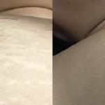 乳輪のぶつぶつ除去