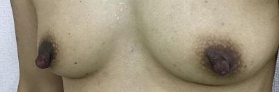 乳頭縮小術前