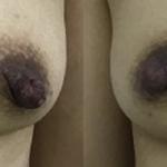 乳頭縮小術