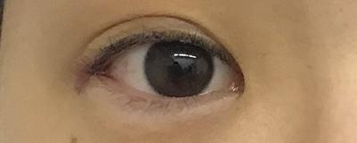 目尻切開術後