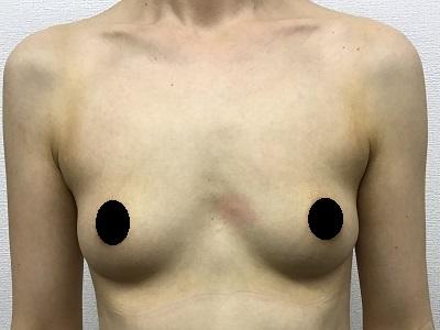 脂肪注入による豊胸術術前