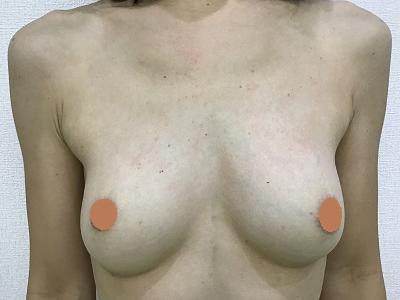 脂肪注入による豊胸術後