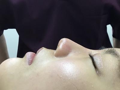 耳介軟骨移植+鼻プロテーゼ術後
