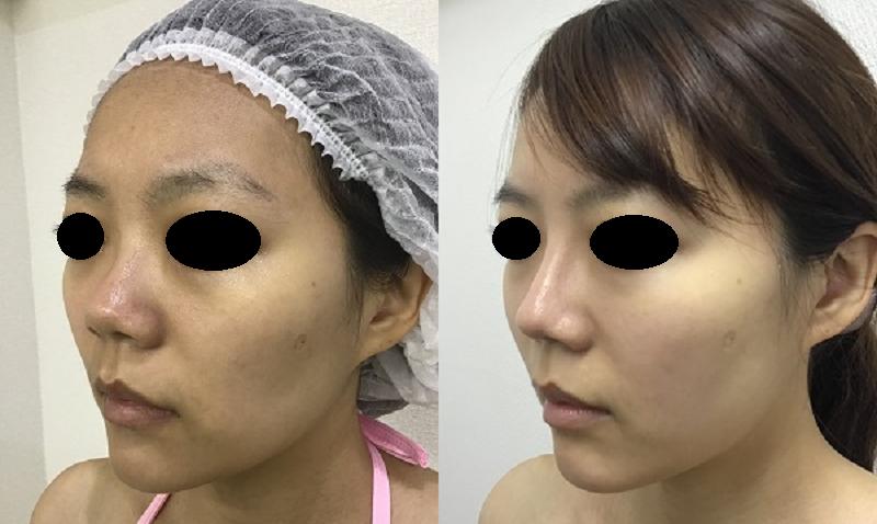鼻のプロテーゼ+耳介軟骨移植