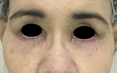下眼瞼切開術後