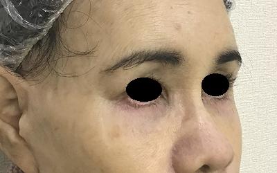 下眼瞼切開術後(ななめ)