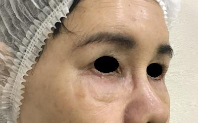 下眼瞼切開術前(ななめ)