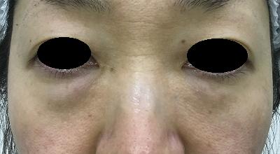 経結膜脱脂術前