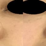 耳介軟骨移植+鼻翼縮小