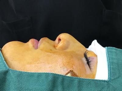 耳介軟骨移植術前