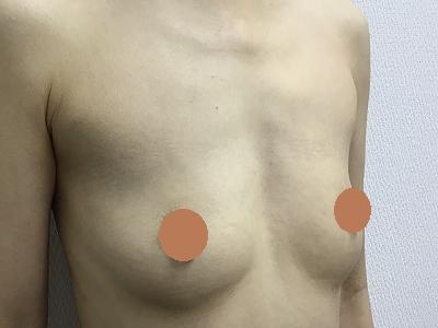 脂肪注入による豊胸術前