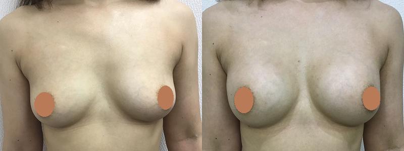脂肪注入による豊胸術