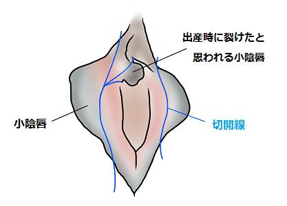 小陰唇縮小術
