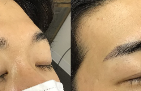 男性の眉アートメイク