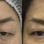 眉下切開で一重のままたるみを改善
