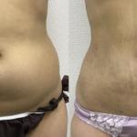 下腹部の脂肪吸引